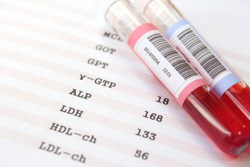更年期の血液検査
